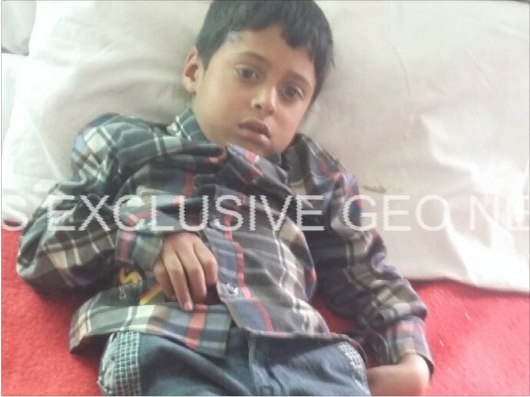 Picture of child injured from Indian shelling – Geo News
