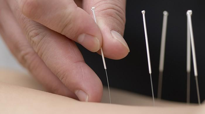 Acupuncture might help prevent migraines