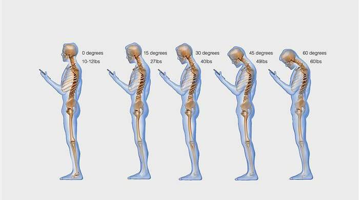 Text Neck: How smartphone usage is messing up our spine