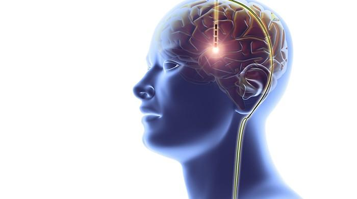 Scientists test deep brain stimulation as potential anorexia therapy