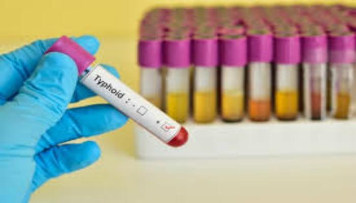 Study finds new superbug typhoid strain behind Pakistan outbreak