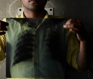 Over 27,000 new cases of TB emerge in Balochistan every year: report