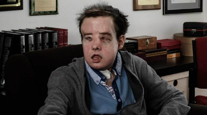 'The man with three faces has second transplant