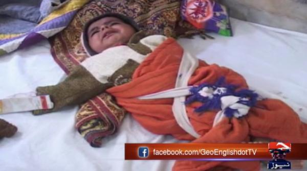 Two minors succumb to malnutrition in Mithi