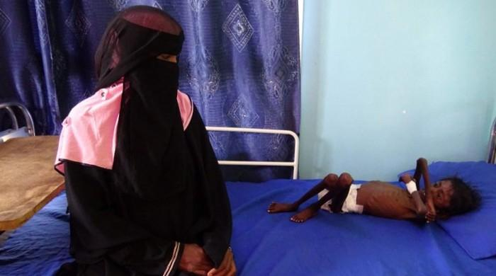 Yemen hospital struggles with number of malnourished children