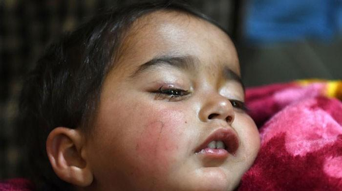 Doctors operate on child whose shooting in eye sparked anger in Occupied Kashmir