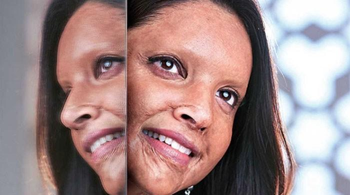 Deepika Padukone shares first look as acid attack survivor in 'Chhapaak'