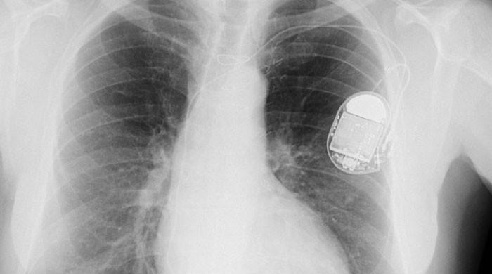 Scientists develop cardiac pacemaker powered by heartbeat