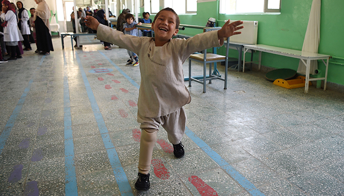 Young Afghan amputees joy at dancing on new leg