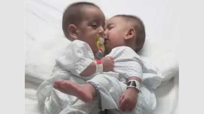 Ten-month-old conjoined twins separated after successful surgery at Karachi hospital