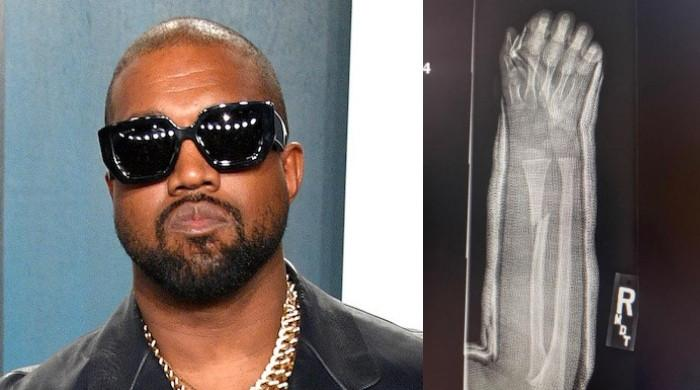 Kanye West shares snaps of what looks like son Saint's broken arm
